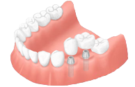 种植牙修复